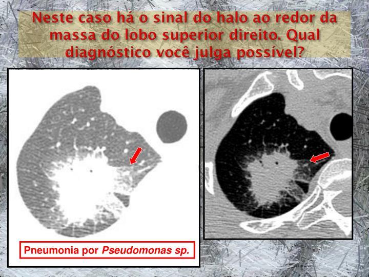 Neste caso há o sinal do halo ao redor da massa do lobo superior direito. Qual diagnóstico você julga possível?