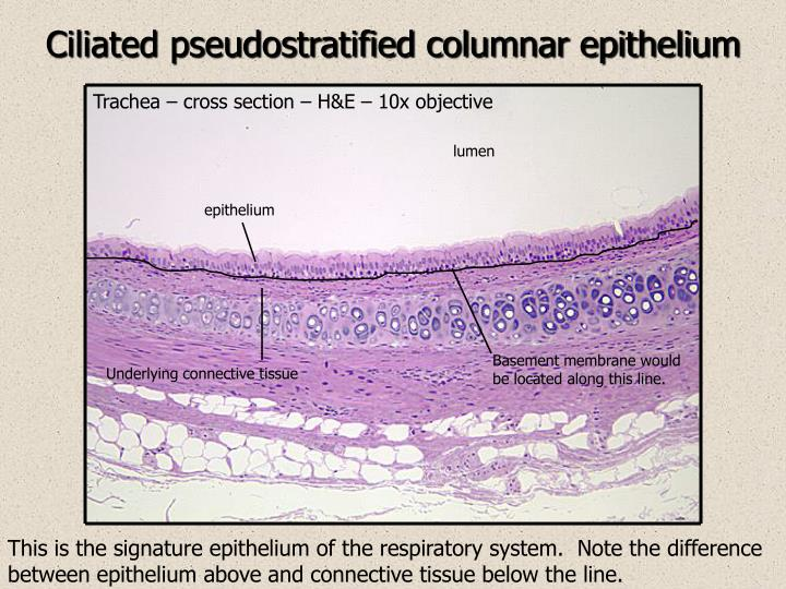 Ciliated pseudostratified columnar epithelium