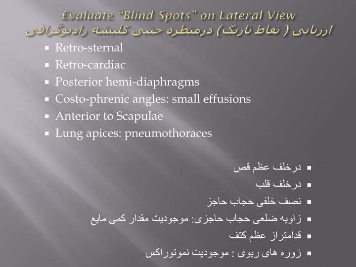 "Evaluate ""Blind Spots"" on Lateral View"