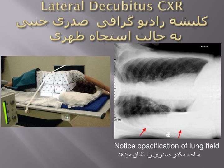 Lateral Decubitus CXR