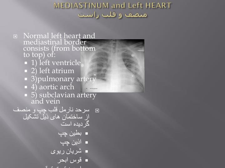 MEDIASTINUM and Left HEART