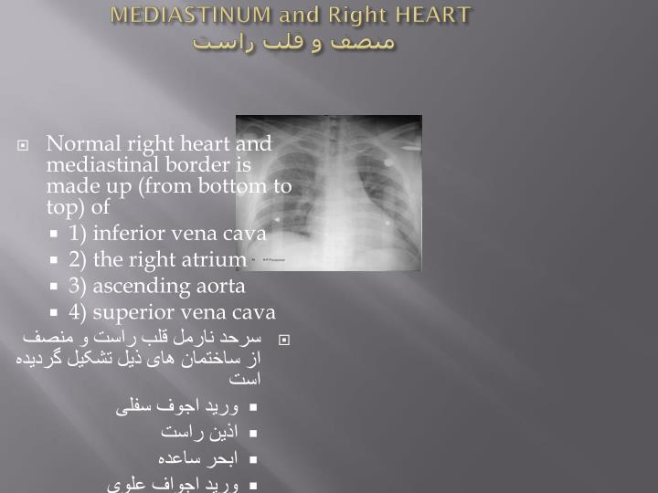 MEDIASTINUM and Right HEART