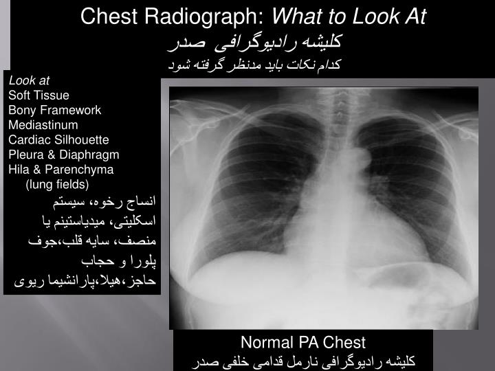 Chest Radiograph: