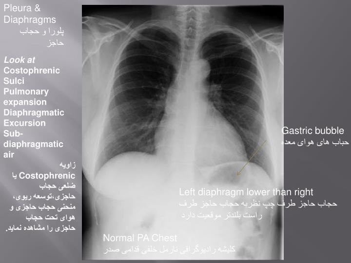 Pleura & Diaphragms