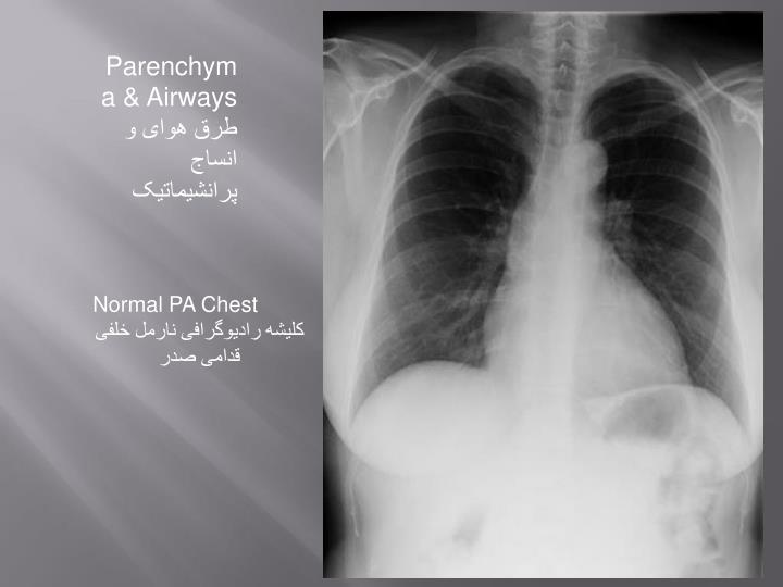 Parenchyma & Airways