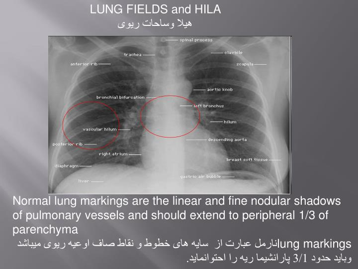LUNG FIELDS and HILA