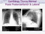 gambaran thorax normal posisi posteroanterior lateral