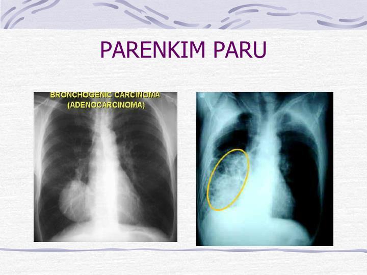 PARENKIM PARU