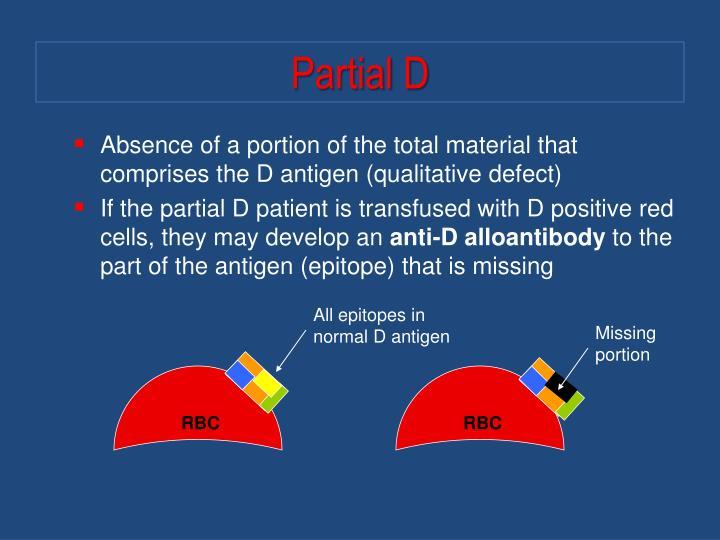 Partial D