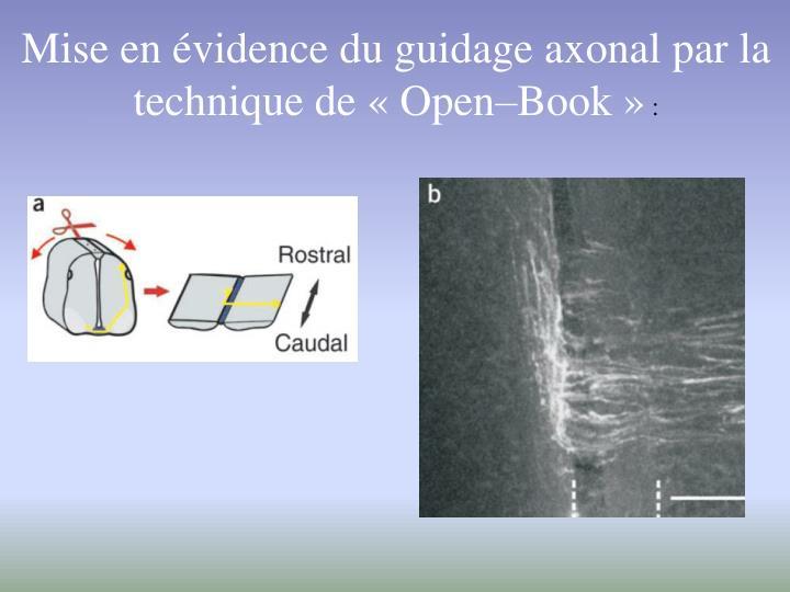 Mise en évidence du guidage axonal par la technique de « Open–Book »