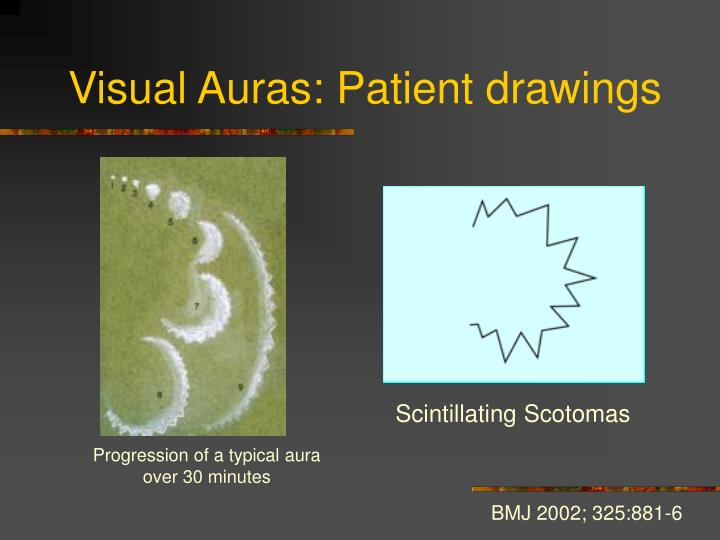 Visual Auras: Patient drawings