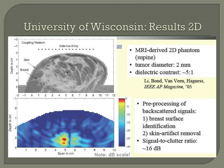 University of Wisconsin: Results