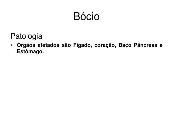 Bócio
