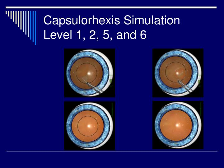 Capsulorhexis Simulation Level 1, 2, 5, and 6