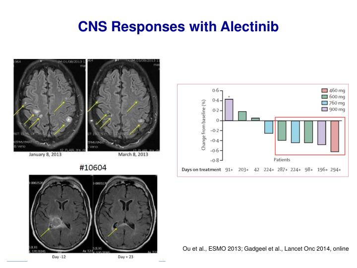 CNS Responses with Alectinib