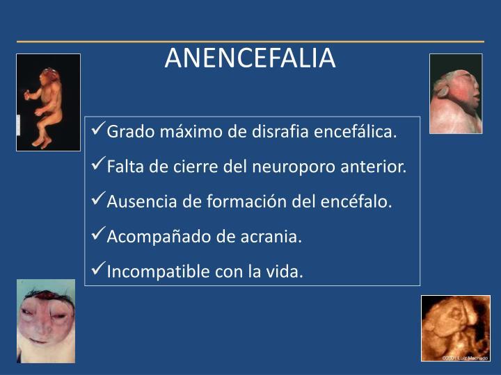 ANENCEFALIA