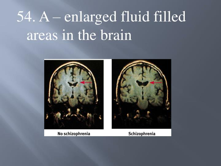 54. A – enlarged fluid filled areas in the brain