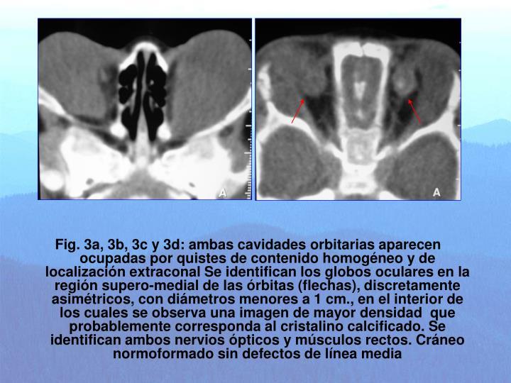 Fig. 3a, 3b, 3c y 3d: ambas cavidades orbitarias aparecen ocupadas por quistes de contenido homogéneo y de localización extraconal Se identifican los globos oculares en la región supero-medial de las órbitas (flechas), discretamente asimétricos, con diámetros menores a 1 cm., en el interior de los cuales se observa una imagen de mayor densidad  que probablemente corresponda al cristalino calcificado. Se identifican ambos nervios ópticos y músculos rectos. Cráneo normoformado sin defectos de línea media