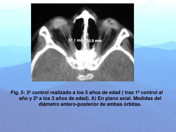 Fig. 5: 3º control realizado a los 5 años de edad ( tras 1º control al año y 2º a los 3 años de edad). A) En plano axial. Medidas del diámetro antero-posterior de ambas órbitas.
