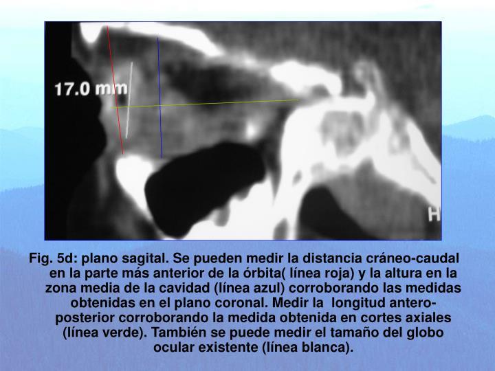 Fig. 5d: plano sagital. Se pueden medir la distancia cráneo-caudal en la parte más anterior de la órbita( línea roja) y la altura en la zona media de la cavidad (línea azul) corroborando las medidas obtenidas en el plano coronal. Medir la  longitud antero-posterior corroborando la medida obtenida en cortes axiales (línea verde). También se puede medir el tamaño del globo ocular existente (línea blanca).