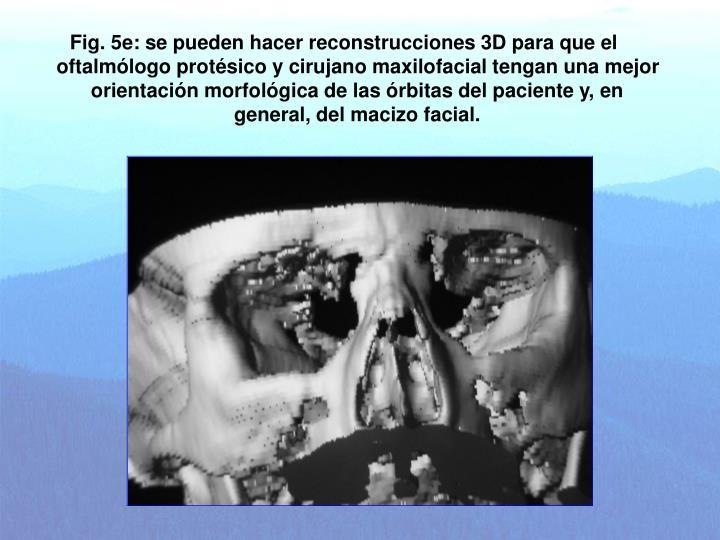 Fig. 5e: se pueden hacer reconstrucciones 3D para que el oftalmólogo protésico y cirujano maxilofacial tengan una mejor orientación morfológica de las órbitas del paciente y, en general, del macizo facial.