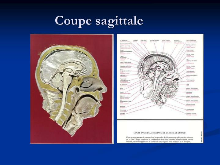Coupe sagittale