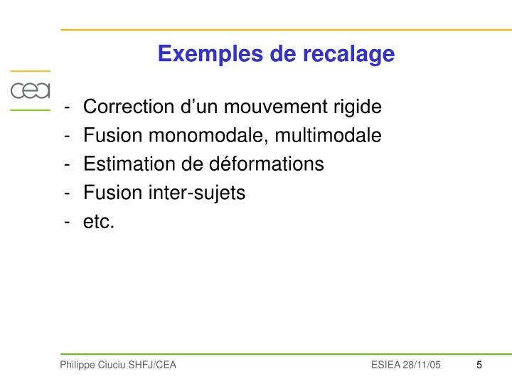 Exemples de recalage
