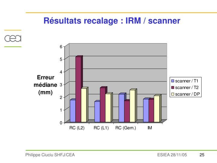Résultats recalage : IRM / scanner