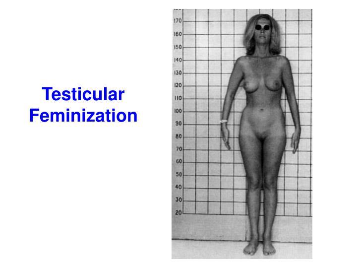 Testicular Feminization