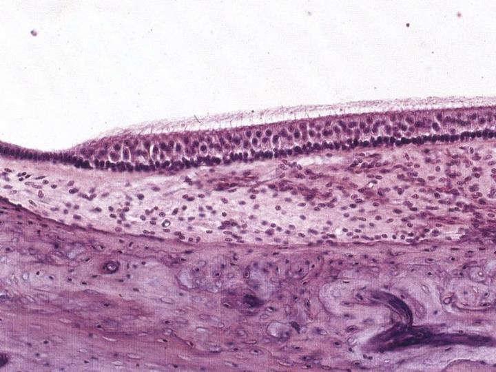 Vláskové buňky