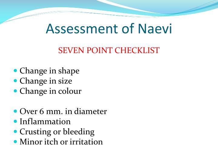 Assessment of Naevi