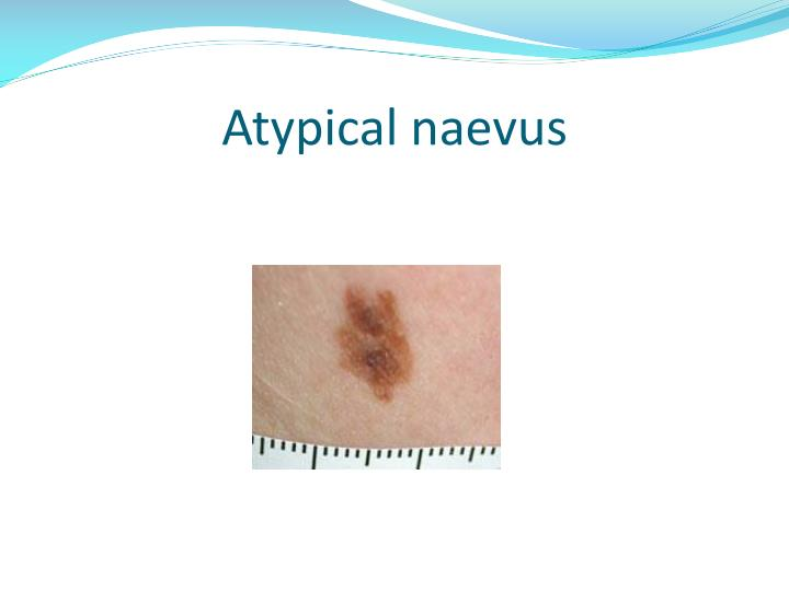 Atypical naevus