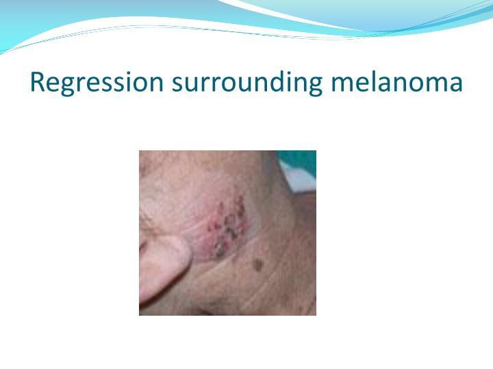 Regression surrounding melanoma