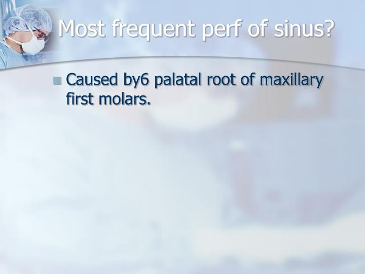 Most frequent perf of sinus?