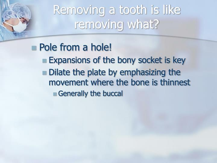Removing a tooth is like removing what?