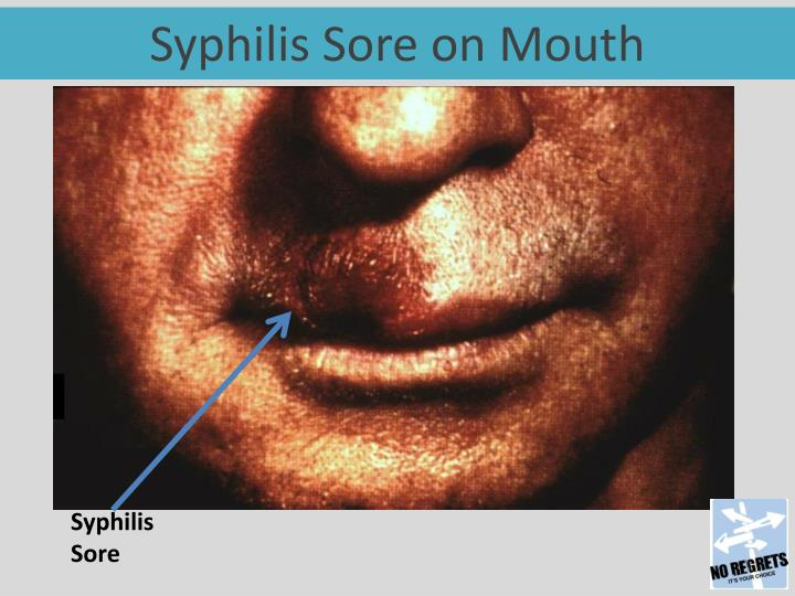 Syphilis Sore on Mouth