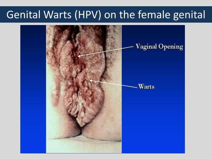 Genital Warts (HPV) on the female genital