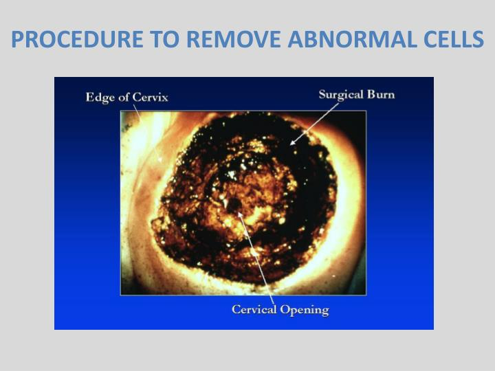 PROCEDURE TO REMOVE ABNORMAL CELLS