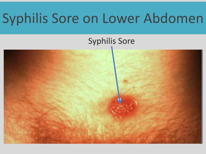 Syphilis Sore on Lower Abdomen