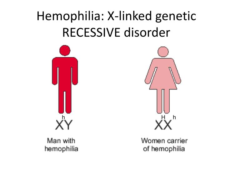 Hemophilia: X-linked genetic  RECESSIVE disorder