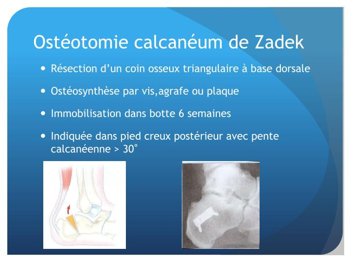 Ostéotomie calcanéum de Zadek