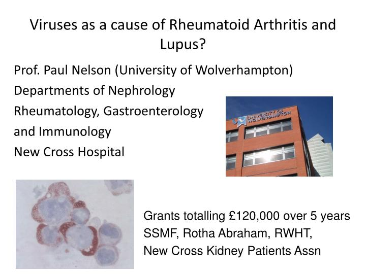 Viruses as a cause of Rheumatoid Arthritis and  Lupus?