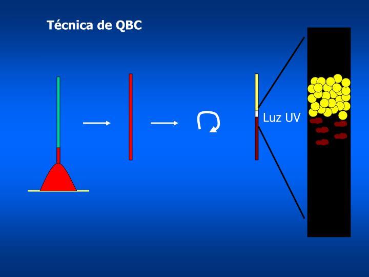 Técnica de QBC