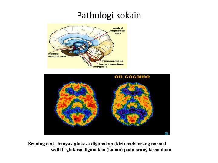 Pathologi kokain