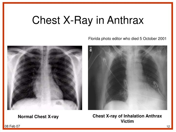 Chest X-Ray in Anthrax