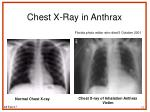 chest x ray in anthrax