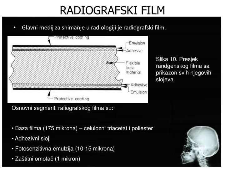 RADIOGRAFSKI FILM