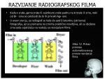 razvijanje radiografskog filma