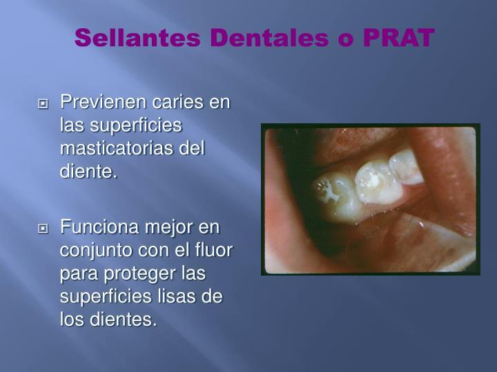 Sellantes Dentales o PRAT