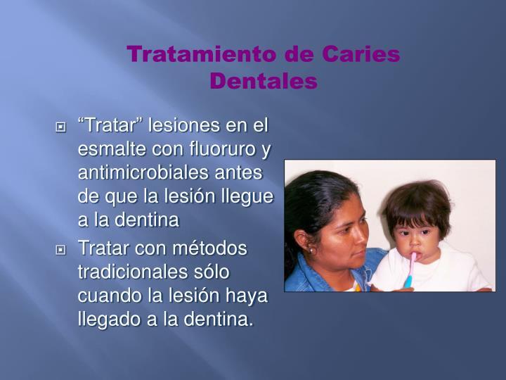 Tratamiento de Caries Dentales